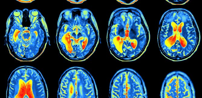 What can neuroscience teach us about the social world?